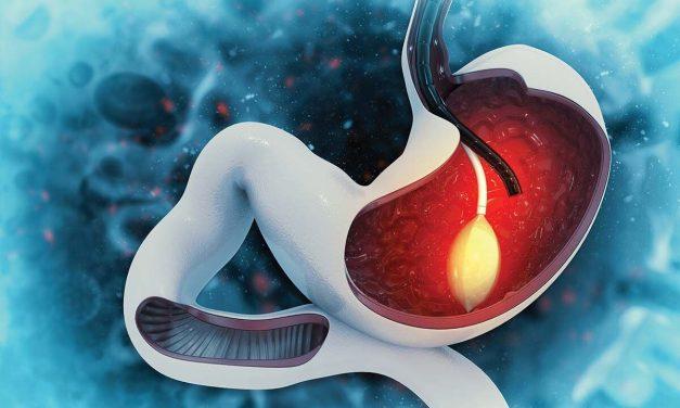 Tratamentul endoscopic al obezităţii